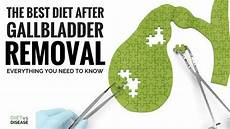 the best diet after gallbladder removal everything you need to know diet disease