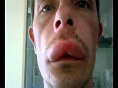 allergische reaktion mückenstich wespenstich