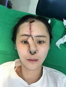 Menakutkan Belanja Rm37000 Tapi Hasil Yang Gadis Ini