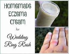 wedding ring rash a homemade that relieves and heals psoriasis treatment best