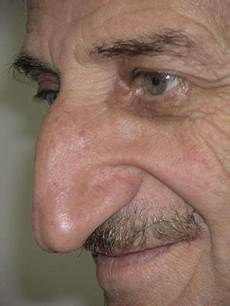Jewish Nose Book Of Guinnes World Record World Longest Nose Mehmet