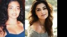 antes e depois famosos antes e depois