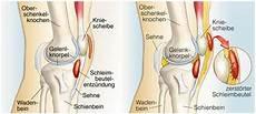 schmerzen im knie innen knieschmerzen symptomecheck was bedeutet schmerz vorne