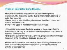 interstitial lung disease pharmacy presentation