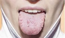entzündung zunge seitlich rissige zunge ursachen behandlung vorbeugung