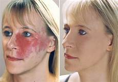 camouflage make up the facts about remedial camouflage make up