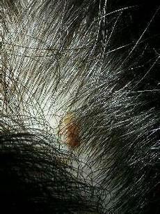 Krusten Auf Der Kopfhaut - hilfe komische wucherung an kopfhaut gesundheit