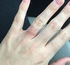 nickel allergy and your white metal choices in 2019 allergies engraving white gold rings