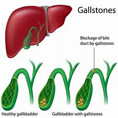 gallbladder diagram cholecystitis pathophysiology podcast and nursing care plan