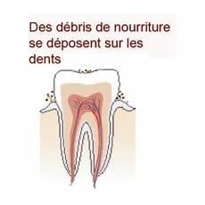 pourquoi se brosser les dents brossage des dents