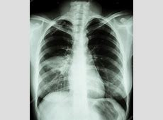 chest xray for pneumonia order