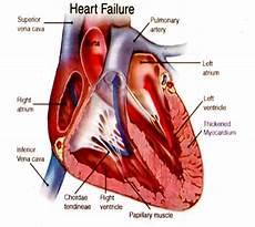 Jenis Jenis Penyakit Dalam Penyakit Dan Gambar Jantung