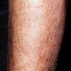 Trockene Haut Beine - itchy lower legs causes treatment remedies