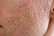 trou peau visage homme traitement des cicatrices profondes d acn 233 esth 233 tique homme