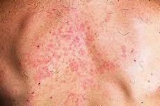 Pilze Im Darm - bakterielle pilzinfektion der haut hefeinfektion