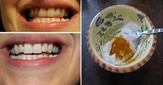 blanchir les dents naturellement astuces de grands m 232 re