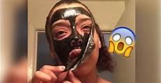 pose un masque au charbon sur visage pour lutter