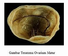 Diagnosis Dan Penatalaksanaan Penyakit Kista Ovarium