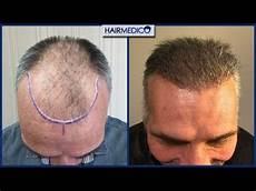 Greffe De Cheveux En Turquie Dr Arslan Musbeh