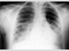 mycoplasma pneumonia treatment guidelines
