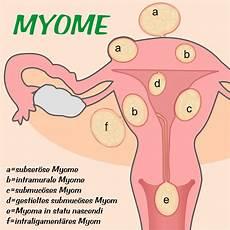 Myom In Der Gebärmutter - myome flora apotheke hannover
