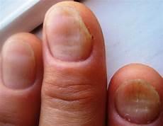 rillen im fingernagel schuppenflechte psoriasis auf n 228 geln nagelkrankheiten