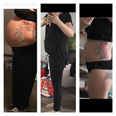 18 ssw bauch 3 schwangerschaft und schon riesigen bauch in der 18 ssw