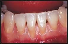 dents qui se déchaussent photos what to do for receding gums gary m verigin dds inc