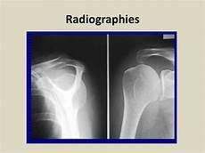 taux ipp tendinopathie ppt coiffe de l 233 paule et m 233 decine expertale powerpoint presentation id 1600373