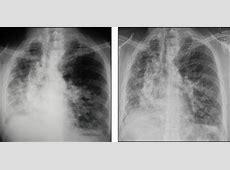can pneumonia scar lungs