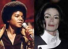 Michael Jackson Haut - 15 black whitening their skin