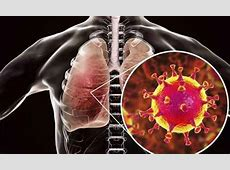 viral pneumonia treatment in adults