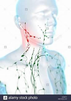 geschwollene lymphknoten hals swollen lymph nodes neck stock photos swollen lymph