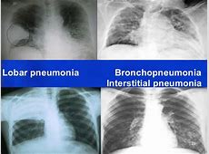 lung cancer and pneumonia symptoms