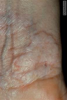 lichen sclerosus bilder lichen sclerosus et atrophicus pictures pictures photos