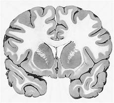 the white and gray matter of the brain gray matter forms the cortex over the cerebrum and