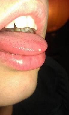 pickel auf der zunge hilfe wei 223 en zungenspitzen pickel arzt zahnarzt zunge