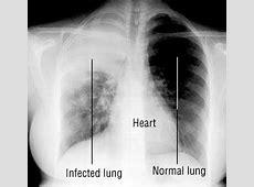 pneumonia with negative x ray