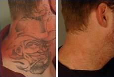 Remo 231 227 O De Tatuagem Zona Sul