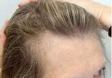 Comment S Explique La Chute De Cheveux Chez La Femme