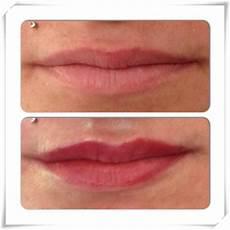 Maquillage Permanent Levres 3d Avant Apres