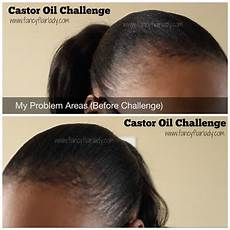 black castor oil hair growth before and after castor oil challenge before after fancyflairlady
