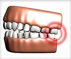 Comment Soulager Une Douleur Dentaire Soins Dentaires