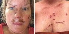 With Skin Cancer Shares Graphic Post Op Photos To