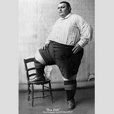 fattest-person-in-the-world-1903