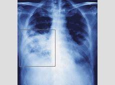nursing diagnosis related to pneumonia