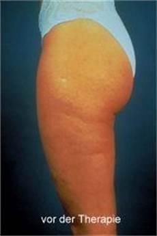 was tun gegen wassereinlagerungen schwere beine cellulite hautarztpraxis dr med erik