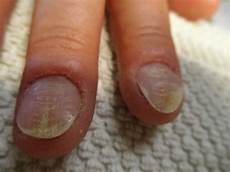 fingernägel längsrillen ursache bild angehende spaltn 228 gel rillen nagelkrankheiten