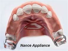 what is a nance appliance and when should you use it