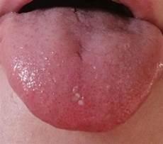 pickel auf der zunge was ist los mit meiner zunge gesundheit blaeschen